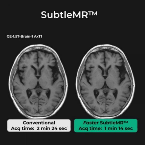 左为常规MRI扫描,右图中SubtleMR使得MRI扫描时间缩短,同时通过AI技术对图像质量进行增强